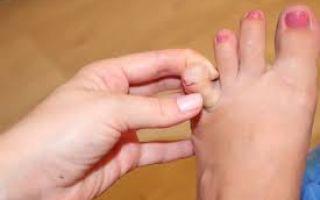 Как и чем лечить болезненное образование между пальцами ног