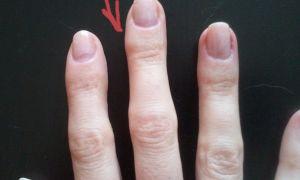 Как можно убрать мозоль на пальце от ручки
