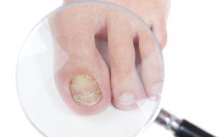 Как применяется сода от грибка ногтей на ногах