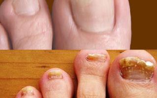 Почему не проходит грибок ногтей