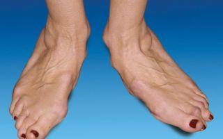 Симптомы и лечение тендовагинита голеностопного сустава