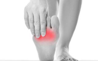 Основные симптомы и лечение лигаментита стопы