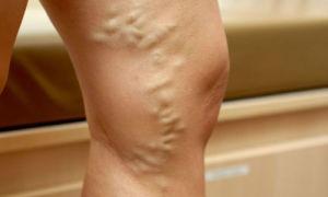 Как диагностировать и лечить тромб в ноге