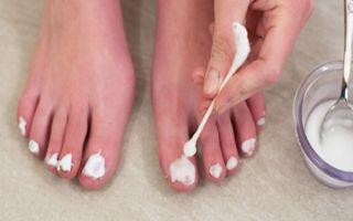 Как проводится лечение грибка ногтей на ногах йодом
