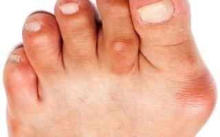 Симптомы и лечение бурсита большого пальца стопы