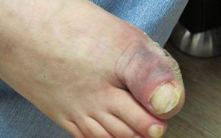 Последствия и лечение гангрены стопы