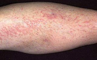Симптомы и лечение герпеса на ноге