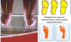 Как можно определить плоскостопие по отпечатку стопы