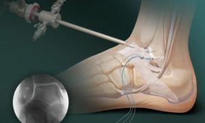 Показания к проведению артроскопии голеностопного сустава