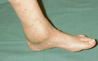 Лечение и последствия артрозо-артрита голеностопного сустава