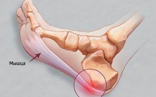 Основные причины и лечение шипов на пятках