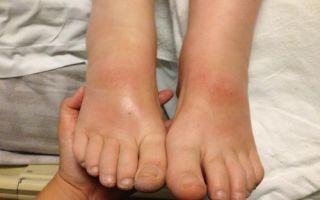 Симптомы и лечение синдрома диабетической стопы