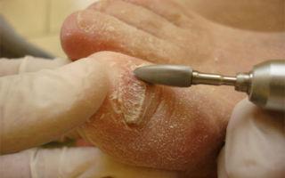 Каким должно быть лечение грибка на ногах в домашних условиях
