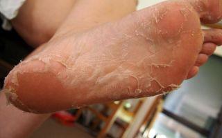 Симптомы и лечение шелушен6ия кожи стоп