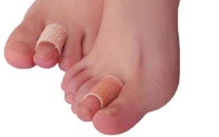 Какой пластырь можно выбрать от натоптышей на ступнях