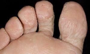 Как определить грибок на ногах