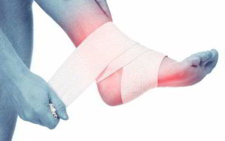 Симптомы и лечение тендинита стопы