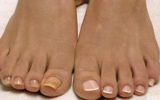 Почему желтеют ногти на ногах и лечение
