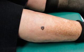 Как и чем лечится меланома на ноге