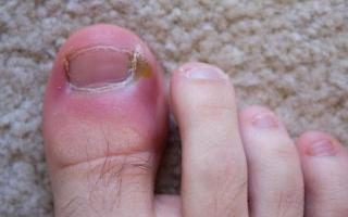 Что делать, если опух большой палец на ноге и болит