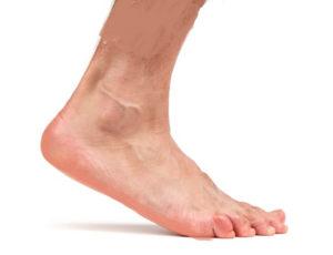болит голеностопный сустав при ходьбе