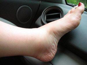 Причины боли и отечности голеностопа