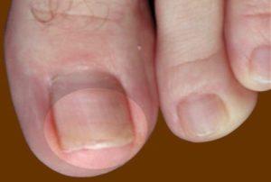 Как быстро вылечить грибок ногтей