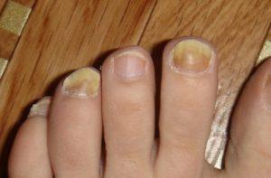 вылечить грибок ногтей