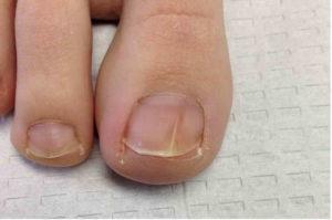 Как вылечивается ногтевой грибок