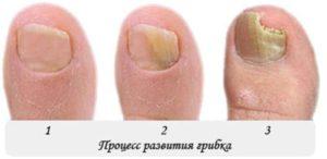 лечить грибок на большом пальце ноги