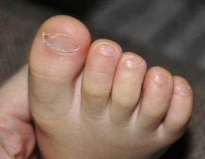 лечить грибок на ногах у детей