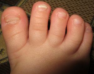 грибок на ногах у детей