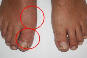 Как лечить подагру на большом пальце ноги