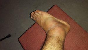 Как можно быстрее восстановить связки голеностопа