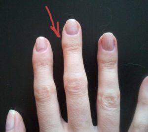 убрать мозоль на пальце от ручки