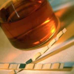Методы выведения мочевой кислоты