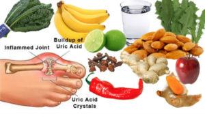Какие продукты нельзя есть при подагре