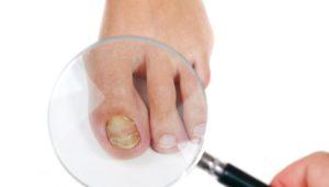 Какой врач лечит грибок ногтей
