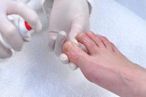Признаки грибковой инфекции