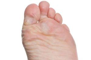 мозоль на большом пальце ноги