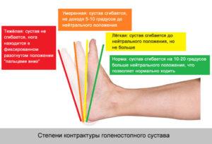 Изображение - Контрактура правого голеностопного сустава kak-i-chem-lechitsya-kontraktura-golenostopnogo-sustava-1-300x204