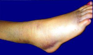контрактура голеностопного сустава