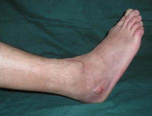 воспаление надкостницы голени