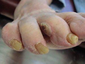 мозоли между пальцами на ногах