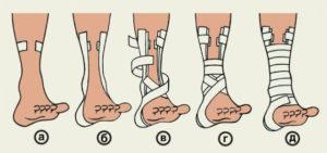 восьмиобразная повязка на голеностопный сустав