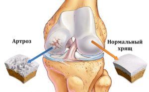 артрозо-артрита голеностопного сустава