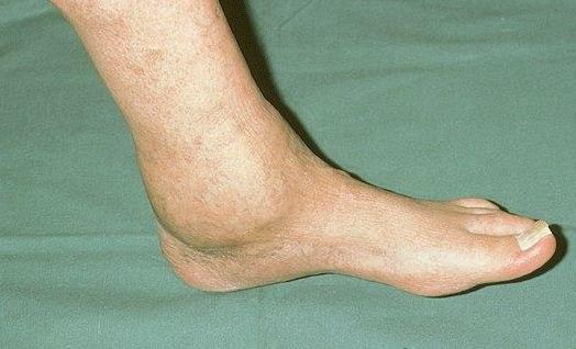 Артроз голеностопного сустава лечение симптомы степени лфк фото видео