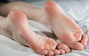 остеохондропатия пяточной кости у детей