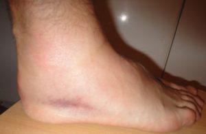 отек голеностопного сустава