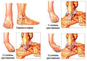лигаментит стопы